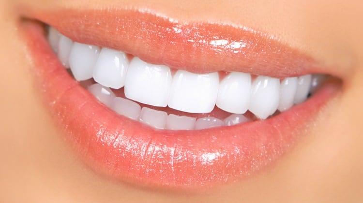 diş beyazlatma işlemi