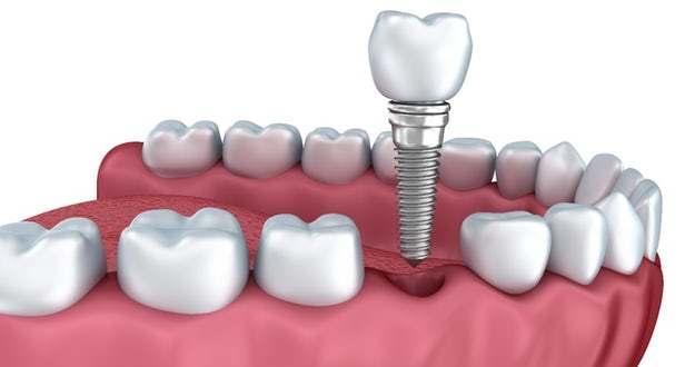 implant görseli
