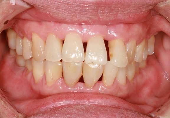 diş eti çekilmesinin tedavisi