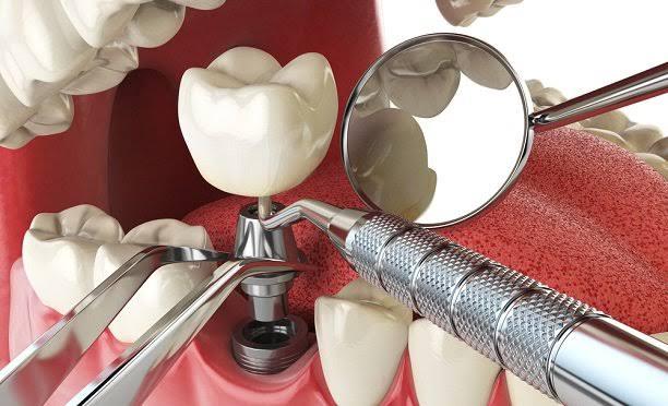 her dişe implant yapılabilir mi
