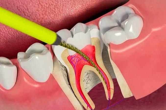 kanal tedavisi her dişe yapılır mı