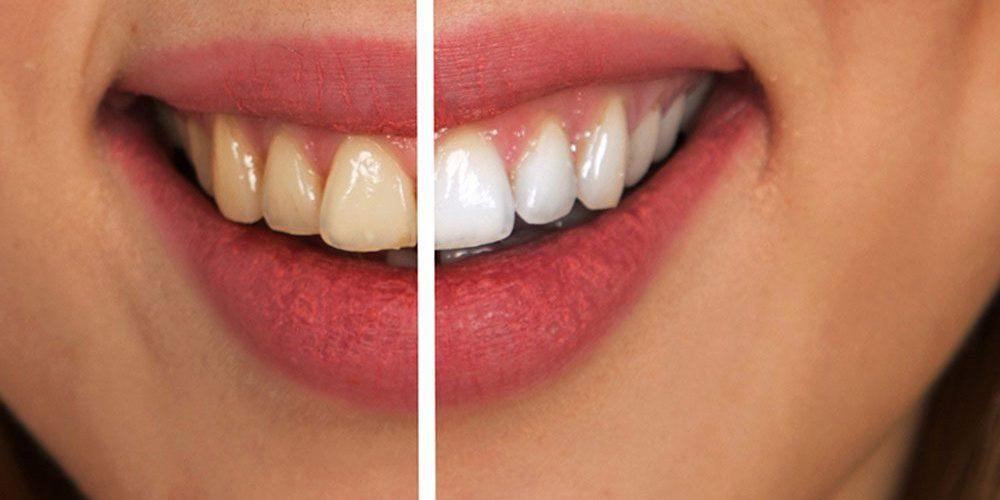 diş beyazlatma ton farkı