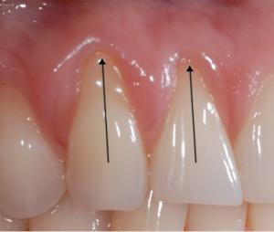 diş eti çekilmesi nasıl anlaşılır