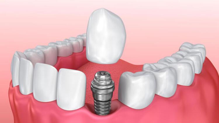 implantlar