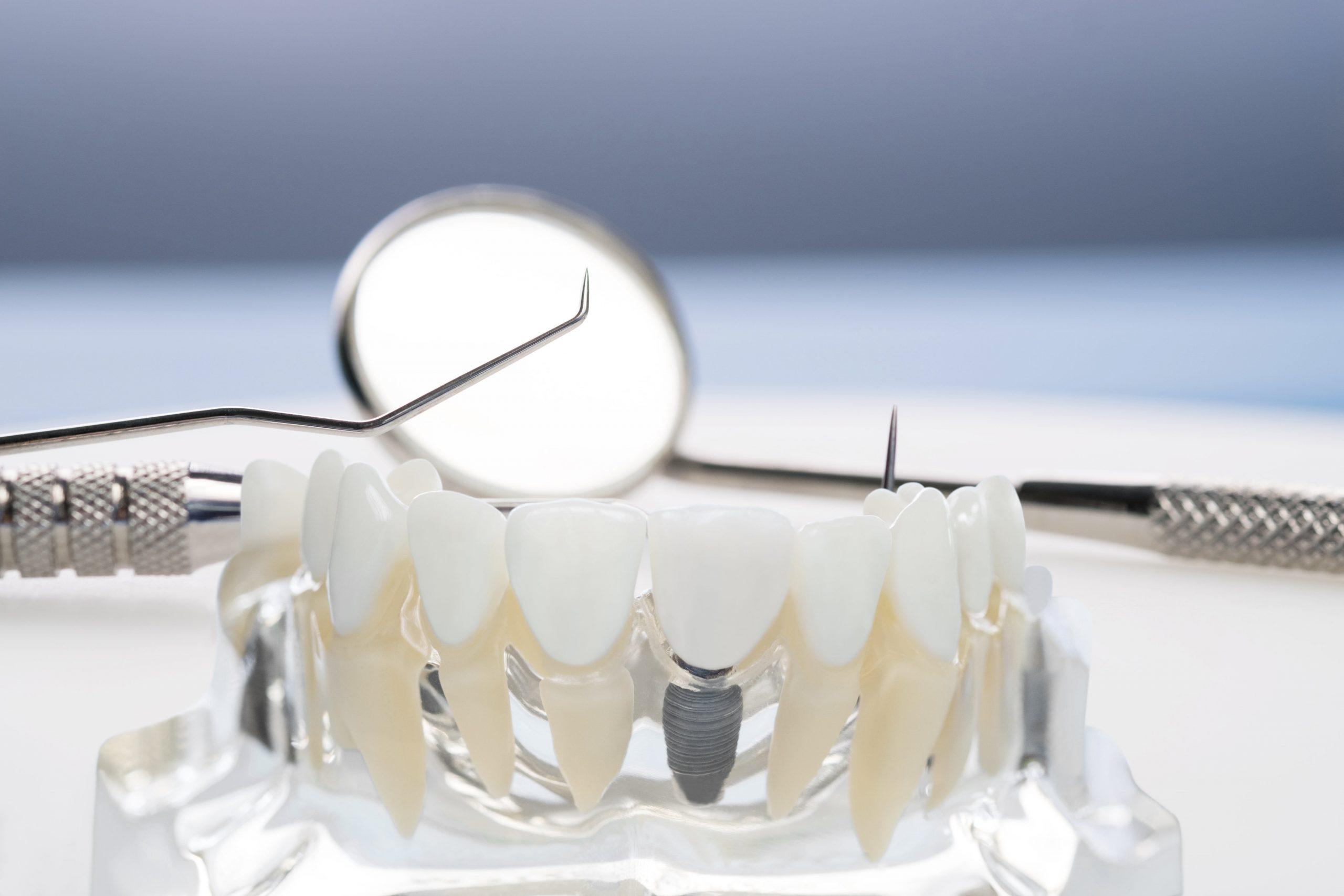 implant uygulamasi