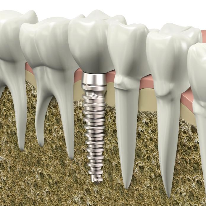 diyabet implant uygulamasi