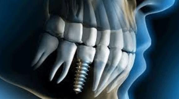 immediat implant uygulamasi