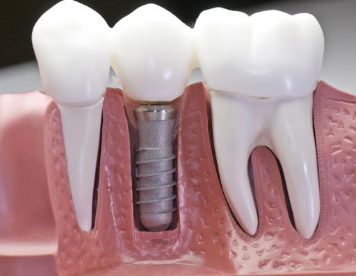 titanyum implant tedavisi