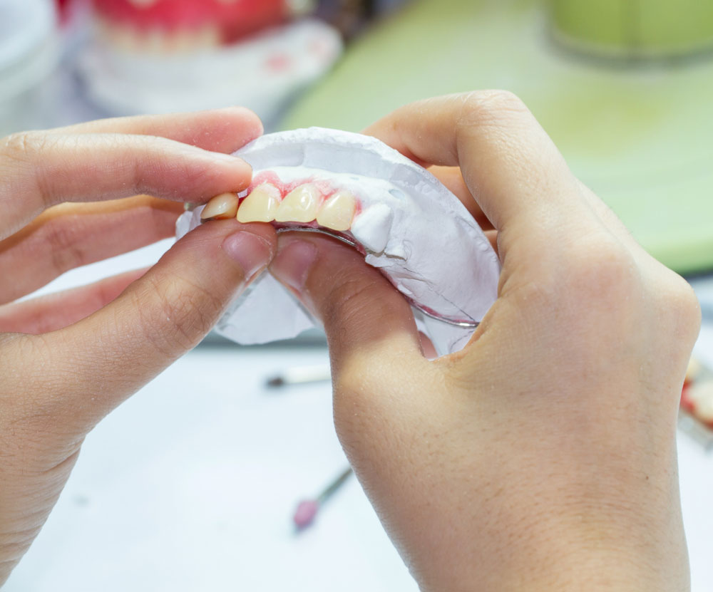 implant ustu protez